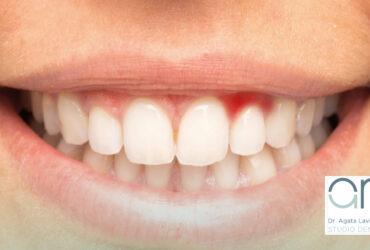 Post FB - area riservata per odontoiatri