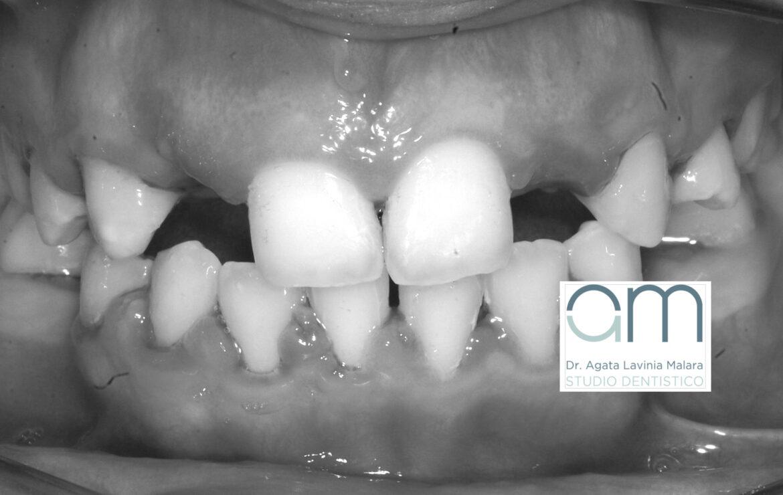 Agenesia dentale