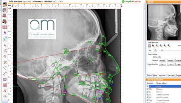 Cefalometria computerizzata