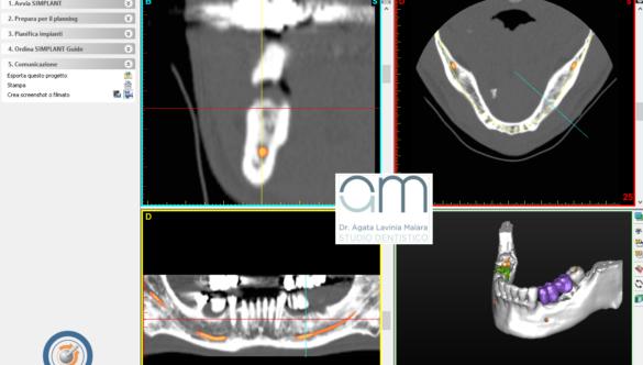 Chirurgia implantare tac guidata