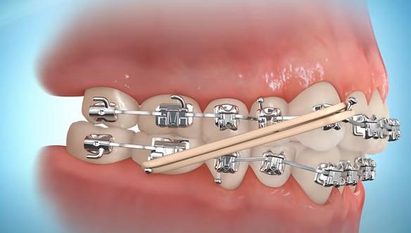 Elastici e apparecchio ortodontico